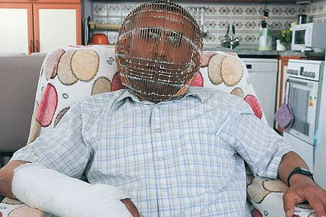 Hombre enjauló su cabeza para lograr dejar de fumar